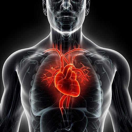 STEMI Heart Attack
