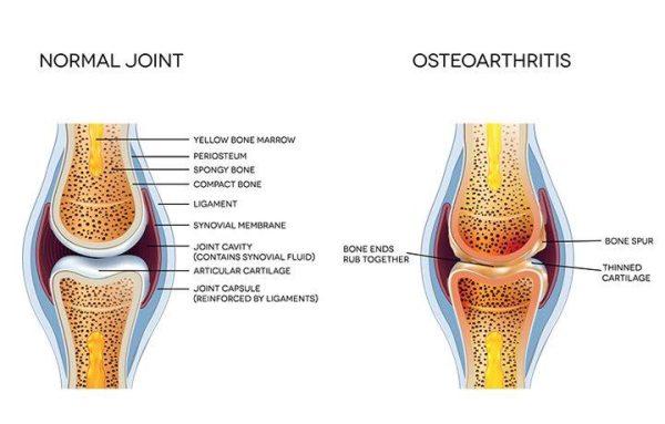 Arthritis In General