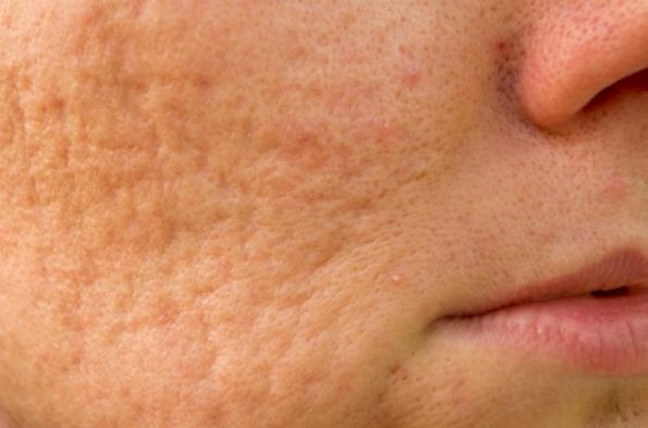 Cysts Acne