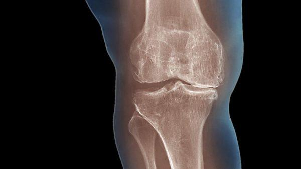 Degenerative Or Mechanical Arthritis