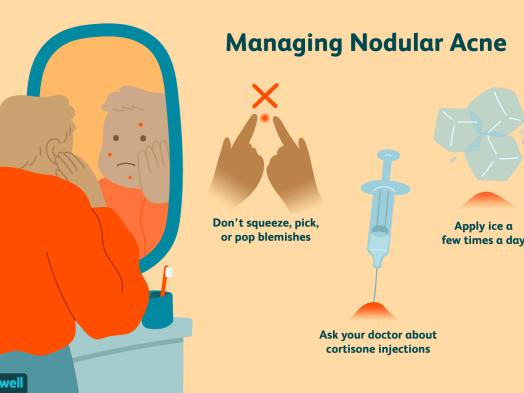 Nodules Acne