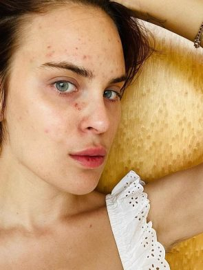 Skin Picking