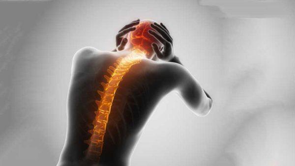 Spinal Headaches