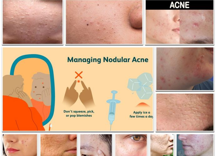 Types of Acne